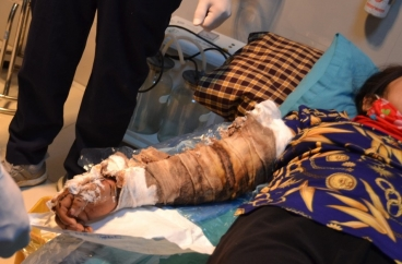 Cánh tay nhiễm trùng, bốc mùi hôi thối vì đắp thuốc nam chữa bỏng