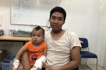 Ca hay tháng 09-10/2019: Cứu sống bàn tay bị dây sên xe hon đa nghiến đứt lìa của bé nhi 12 tháng tuổi