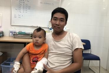 Ca hay tháng 09/2019: Cứu sống bàn tay bị dây sên xe hon đa nghiến đứt lìa của bé nhi 12 tháng tuổi