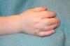 Đánh giá kết quả điều trị tật dính ngón bẩm sinh ở trẻ em