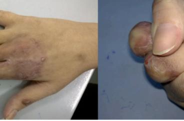 Đánh giá kết quả điều trị mất mô mềm lộ gân xương mặt lưng ngón tay dài bằng vạt cân mỡ chéo ngón