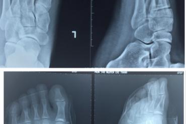 """Kết quả điều trị gãy thân xương bàn chân 2,3,4,5 bằng kim """"K"""" xuôi dòng dưới C-ARM"""