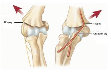 Nghiên cứu điều trị gãy trên lồi cầu xương cánh tay kiểu duỗi ở trẻ em bằng nắn kín và xuyên kim qua da dưới màn tăng sáng