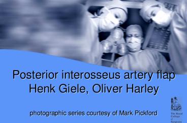 Posterior interosseus artery flap